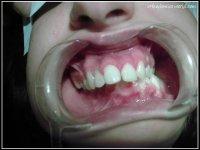 Endognatie mandibulaire