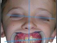 Asymétrie faciale