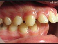 prognatisme maxillaire