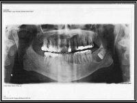 Kyste mandibulaire