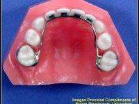 mainteneur d'espace avec dents