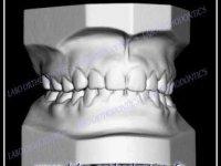 Numérisation 3D des moulages ou empreintes