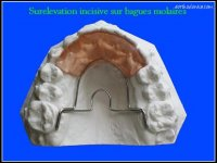 Surelevation incisive sur bagues