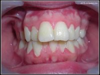 Endognathie maxillaire