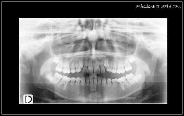 Dysplasie dentinaire de type 1